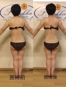 筋膜リリース 軟部組織リリース 痛くない筋膜リリース
